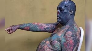 Brazilian man cuts off nose, tattoos entire body