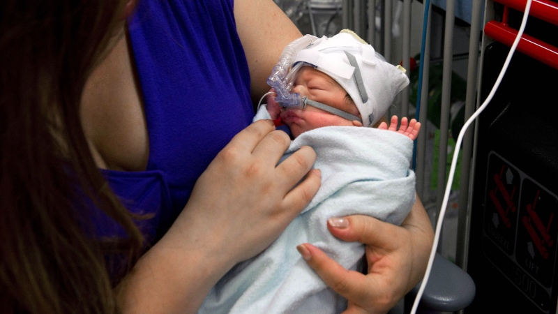 A premature baby is pictured in the neonatal intensive care unit of Mount Sinai Hospital in Toronto in this file photo taken, Sept. 11, 2013. THE CANADIAN PRESS/Galit Rodan