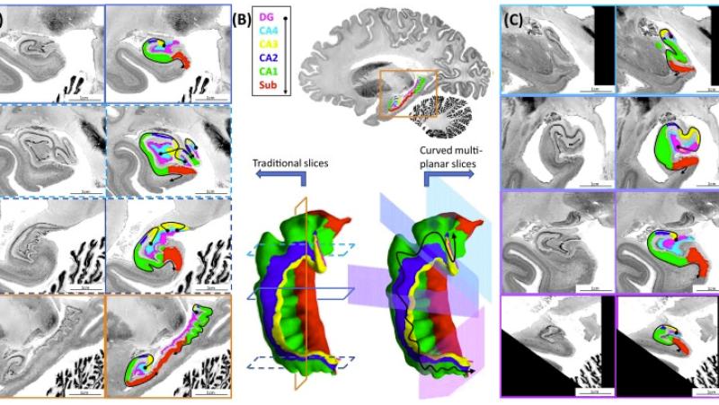 (Source: Trends in Neurosciences)