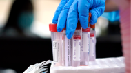 File photo: Test tubes are prepared for COVID-19 testing inside a hospital. (AP Photo/David J. Phillip, File)