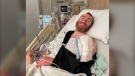 Vancouver cyclist Gary Kalmek suffered a broken leg, a broken arm and three broken ribs when he was hit by a car while riding his bike at Main Street and 15th Avenue in Vancouver in early June. (Gary Kalmek)