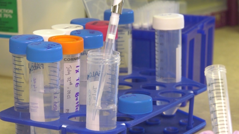 A COVID-19 vaccine developed in Edmonton is moving to the next stage of clinical trials. Aug. 4, 2021. (CTV News Edmonton)