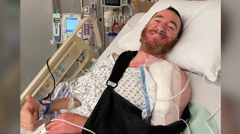 Vancouver cyclist Gary Kalmek suffered a broken leg, a broken arm and three broken ribs when he was hit by a car while riding his bike at Main Street and 15th Avenue in Vancouver in early June. (Provided image)
