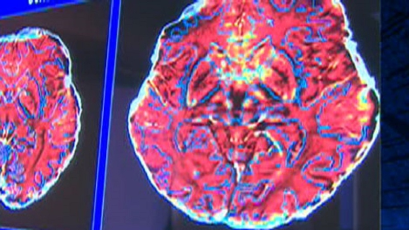 A scan showing multiple sclerosis is seen in this file photo.
