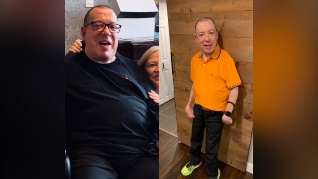 Dave Dame, who has cerebral palsy, has lost 50 pounds while training for Sunday's Terry Fox Walk. Pictured here before and after his weight loss. (Supplied)