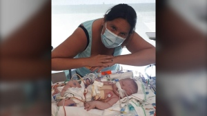 Nicole Banman and her 14-month-old son, Brodie who is need of a cleft palate surgery. (supplied)
