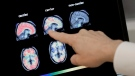 In this Aug. 14, 2018 file photo, a doctor goes over a PET brain scan at Banner Alzheimer's Institute in Phoenix, Az. (AP Photo/Matt York, File)