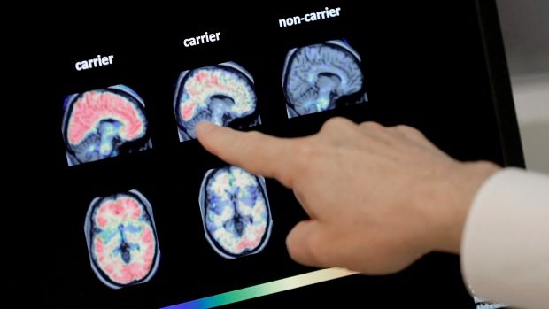 New report suggests 75 per cent of dementia cases are undiagnosed, with 'tsunami' of new diagnoses on the horizon