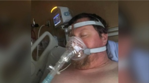 Josh Mellor is pictured using a a continuous positive airway pressure (CPAP) machine before his breathing got so bad that he required a ventilator: (Miranda Mellor)