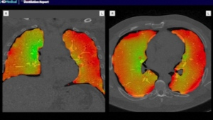 A pulmonologist explains the effects of long-term COVID-19 using a new 4D scan.