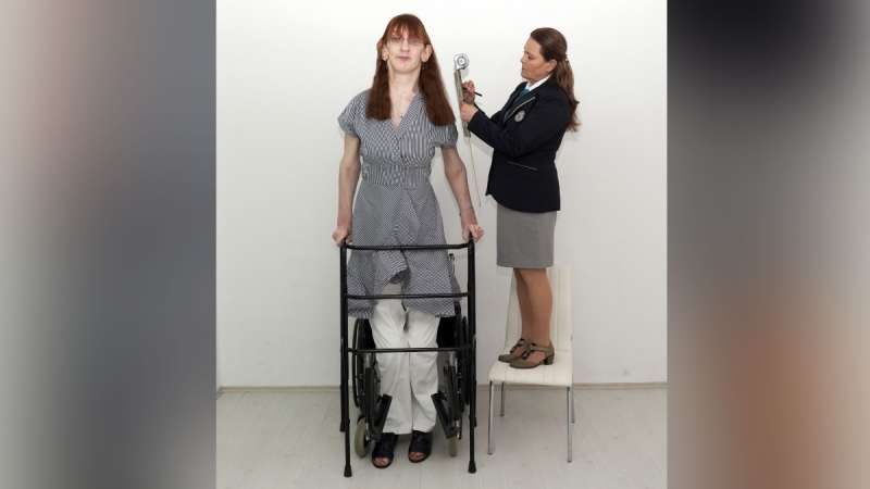 Rumeysa Gelgi stands 215.16 centimetres (7 feet, 0.7 inches) tall. (Guinness World Records / PA / Sipa)