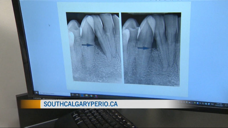Periodontists play an important role in oral health. We visit South Calgary Perio to learn more