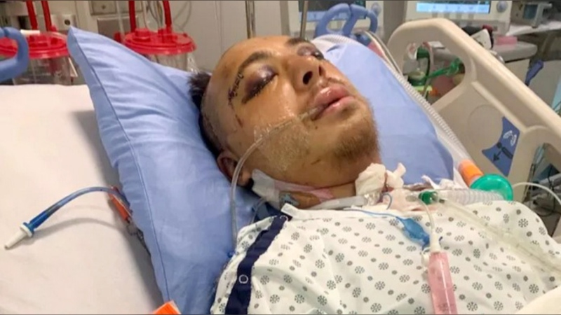 Michael Richards is in hospital after being seriously injured in a random attack in downtown Calgary. (GoFundMe)