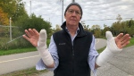 Paul Morton injured both of his arms after crashing his bike in a pothole. (Dave Charbonneau/CTV News Ottawa)