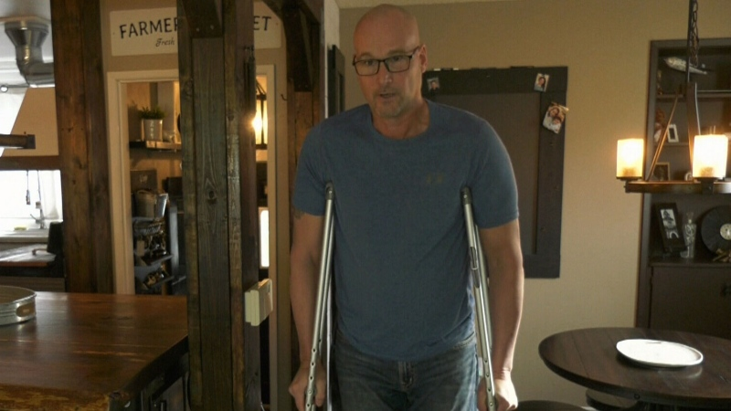 Winnipegger considers paying for hip replacement