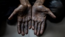A child laborer displays his hands after being rescued in a raid by Bachpan Bachao Andolan, or Save the Childhood Movement, at a garage in New Delhi, India, Thursday, Aug. 26, 2021. (AP Photo/Altaf Qadri)