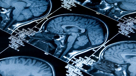 Researchers at the University of Alberta are developing a machine learning tool that they say can identify the risk of a schizophrenia diagnosis by analyzing brain scans. (File photo)