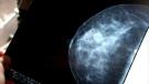 Quebec breast cancer tests