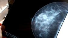 Quebec breast cancer tests