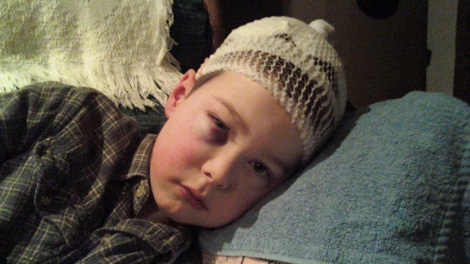 David Metzler Jr., 7, of Danskin, B.C., returned to school Monday, days after being attacked by a cougar while he played in the snow. Jan. 4, 2010.
