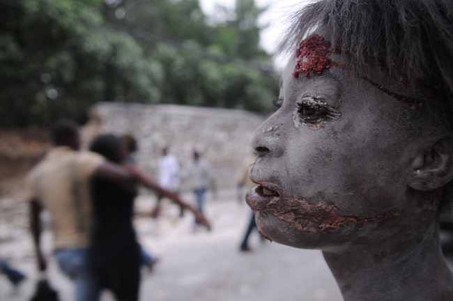 An injured person is seen after an earthquake hit Port-au-Prince, Haiti, Tuesday, Jan. 12, 2010. (AP / Jorge Cruz)
