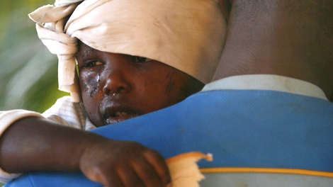 A young injured earthquake survivor holds a piece of bread in a makeshift shelter in Port-au-Prince, Haiti, Thursday, Jan. 14, 2010. (AP / Ricardo Arduengo)