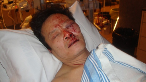 Yao Wei Wu says Vancouver police forcefully pulled him out of his house and onto the ground. Vancouver police later issued a public apology and promised a full investigation. Jan. 21, 2010. (handout)
