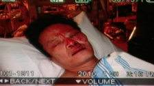 Yao Wei Wu suffered injuries after Vancouver police mistakenly arrested him at his East Vancouver home, Thursday, Jan. 21, 2010.