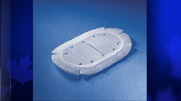 Some Kugal mesh patches were ordered off the Canadian market, three years after Pells had her surgery.