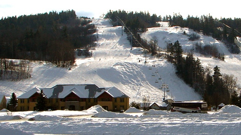 calabogie girls Calabogie definition a place where you can ski/snowboard drunk and people will love you for it it has the best race track, restaurants, and women it's the place to be guy 1.