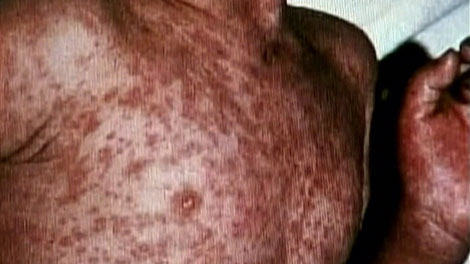 Public health officials in B.C. are warning of a measles outbreak. (CTV)