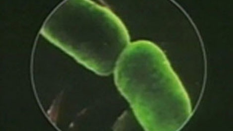 Clostridium difficile is a bacterium that causes diarrhea and more serious intestinal conditions, such as colitis.