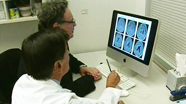The University of Alberta's Dr. Evangelos Michelakis and a colleague look at a brain scan in Edmonton, Wednesday, May 12, 2010.