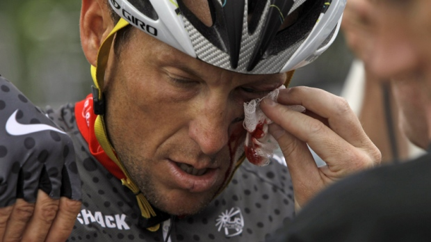 Lance Armstrong is tended to after crashing during the fifth stage of the Tour of California cycling race in the outskirts of Visalia, Calif., Thursday, May 20, 2010. (AP / Marcio Jose Sanchez)