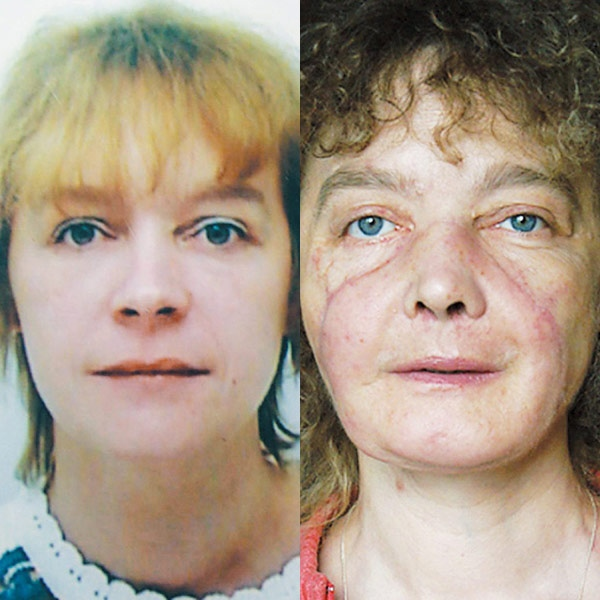 This combination photo shows face transplant patient Isabelle Dinoire in June 2001 (left) and June 2007 (right), 18 months after transplantation, showing her without makeup. (AP / New England Journal of Medicine)