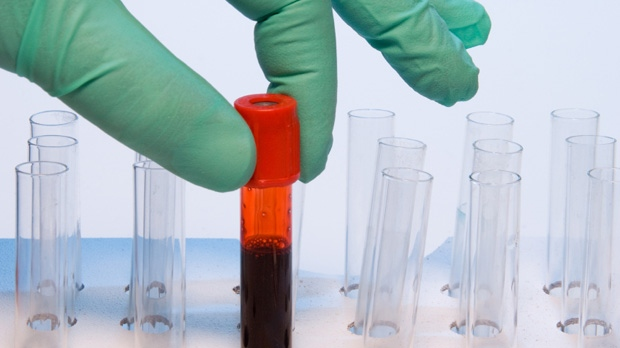 Blood test for gut bacteria could help ER doctors predict risk of heart problems, death: study