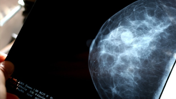 The breast cancer drug tamoxifen further reduces the risk of disease recurrence and death when the treatment period is doubled to 10 years from the current standard of five, a new study suggests.