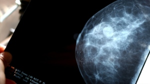 Mammogram Screening