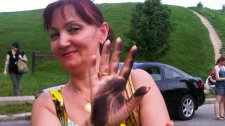 Irena Dervisha of Toronto shows hands covered in dirt from subway tunnel walls after she and about 25 customers had to escape via an emergency exit between St Clair West and Dupont Stations on Wednesday, July 6, 2010. (Keith Hanley / CTV News)