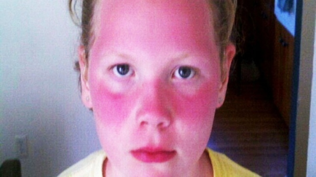 Sunburned girl Violet Michener