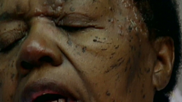 Debilitating Pain Of Shingles Can Last Years After Rash