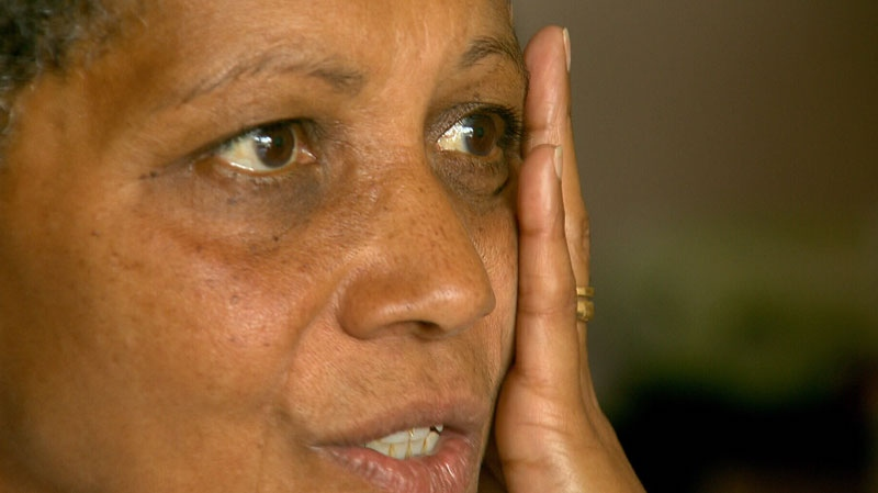 Sharie Barker holds her cheek as she describes the jaw pain she experiences because of arthritis and temporal mandibular joint syndrome. July 6, 2012. (CTV)
