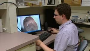 CTV Edmonton: Ticks carrying Lyme disease found in Alta.