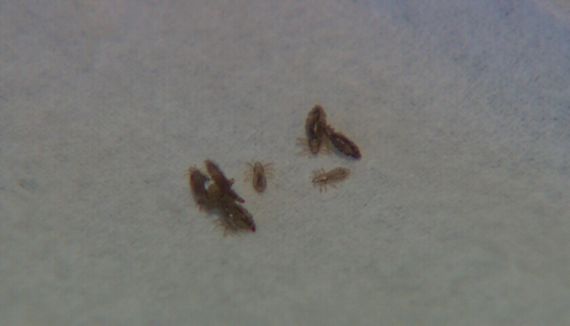 Head lice are seen in this file photo.