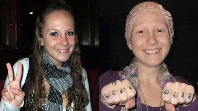 """In this undated photo, Ashley Kirilow is seen with and without hair. The photo was posted to a Facebook group called """"Change"""" For a Cure. Kirilow is listed as one of the group's administrators."""