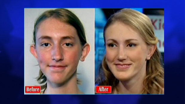 Nadia Ilse, 14, got free plastic surgery through a U.S. foundation after being bullied for years about her appearance.