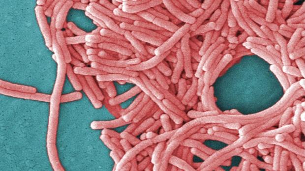 Legionnaires, bacteria, microscope
