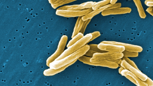 The Mycobacterium tuberculosis (TB) bacteria is shown in a 2006 high magnification scanning electron micrograph (SEM) image. (CDC - Janice Carr)