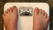 Obesity, Scale, Weight,