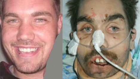 Dustin LaFortune is seen here in this composite image of photos taken from Facebook, before and after the alleged torture